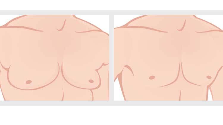 Réduction de la poitrine masculine