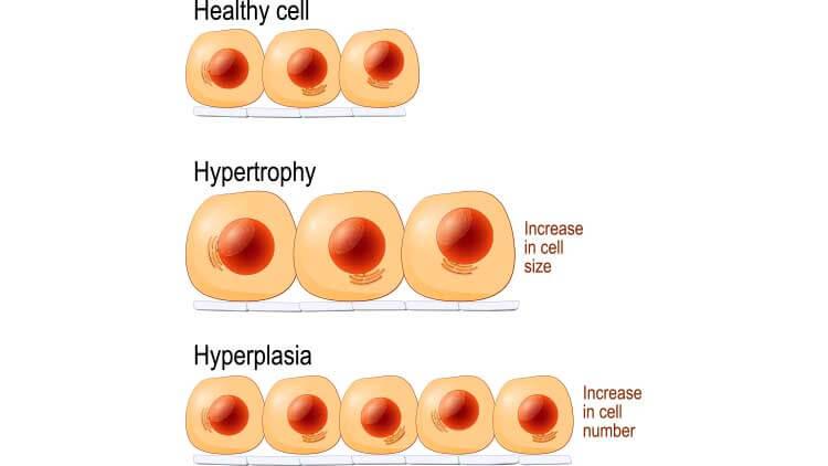 Cellules normales, hypertrophie et hyperplasie